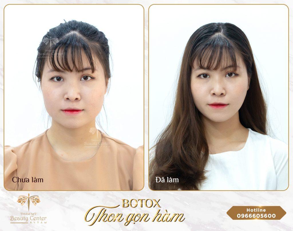 ưu điểm của tiêm botox thon gọn hàm