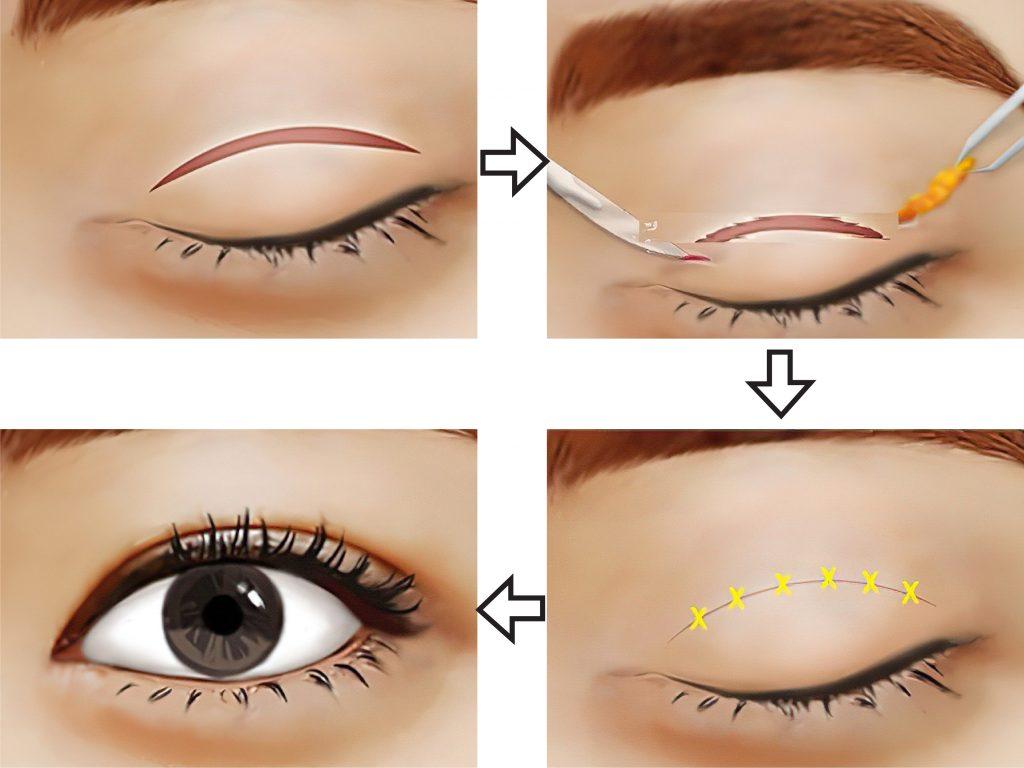 cắt mí mắt là gì