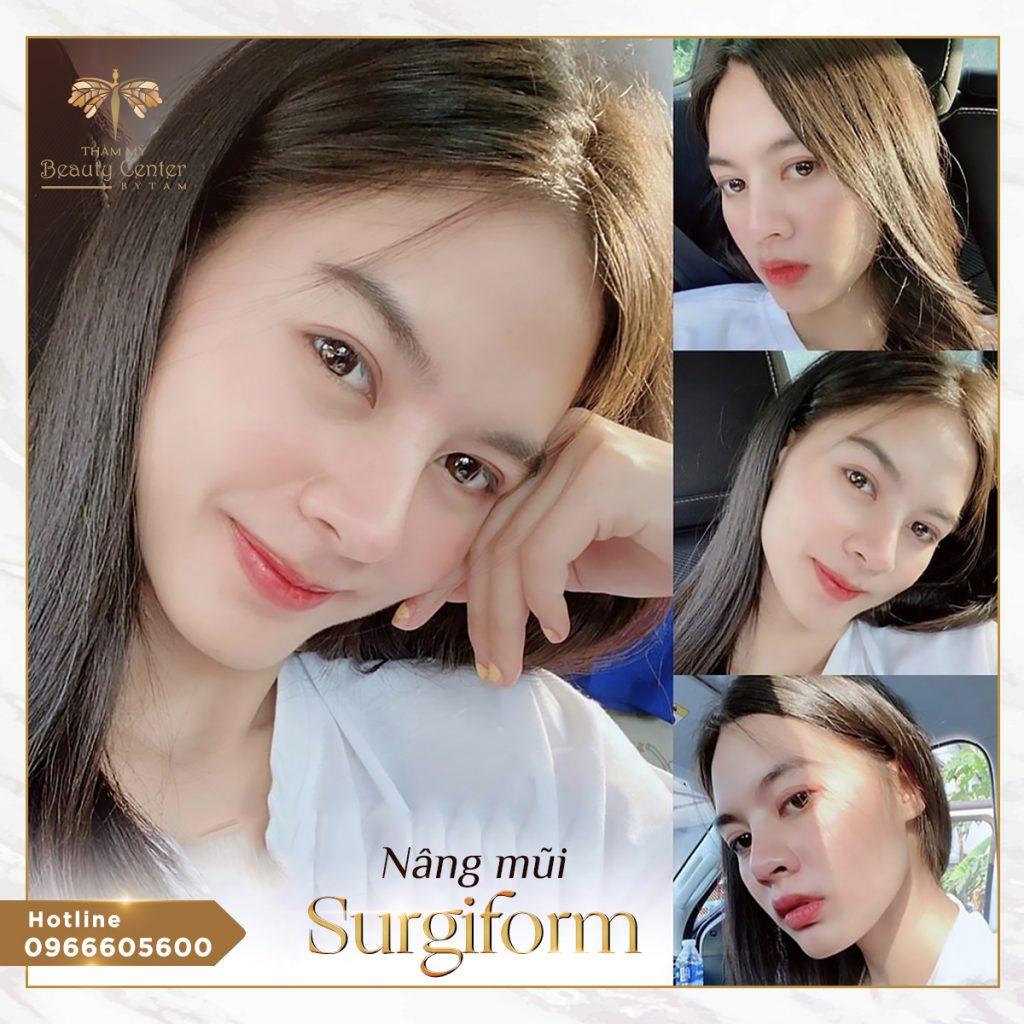 Nâng mũi Surgiform - Thẩm Mỹ Beauty Center By Tấm