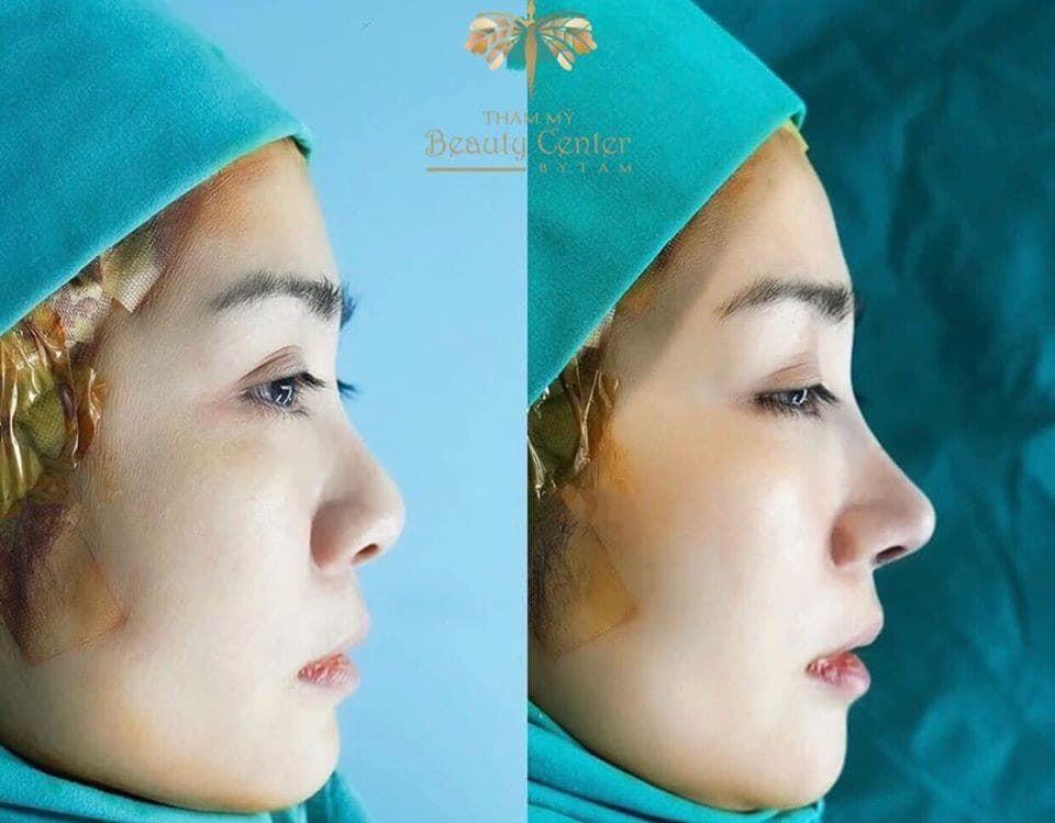 kiêm tra sức khỏe trước khi nâng mũi