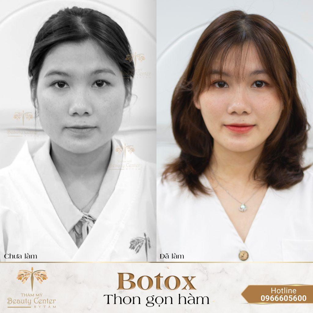 tiêm botox gọn hàm có đau không