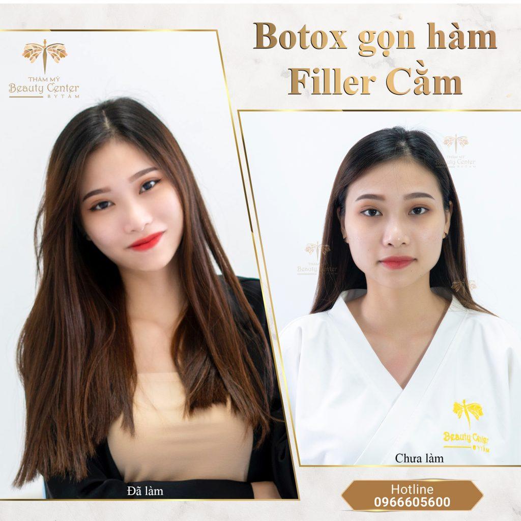 tiêm botox có bị đơ mặt không