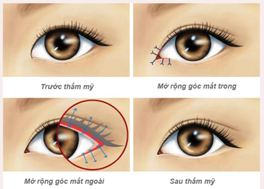 kiêng khem và chăm sóc sau khi mở góc mắt