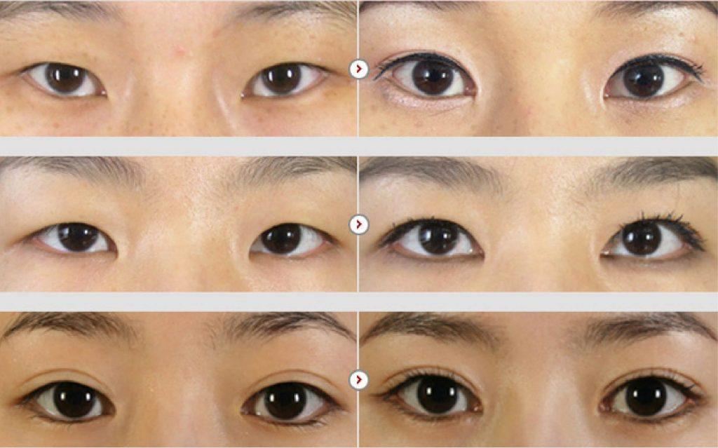 mở góc mắt có ảnh hưởng đến thị lực không