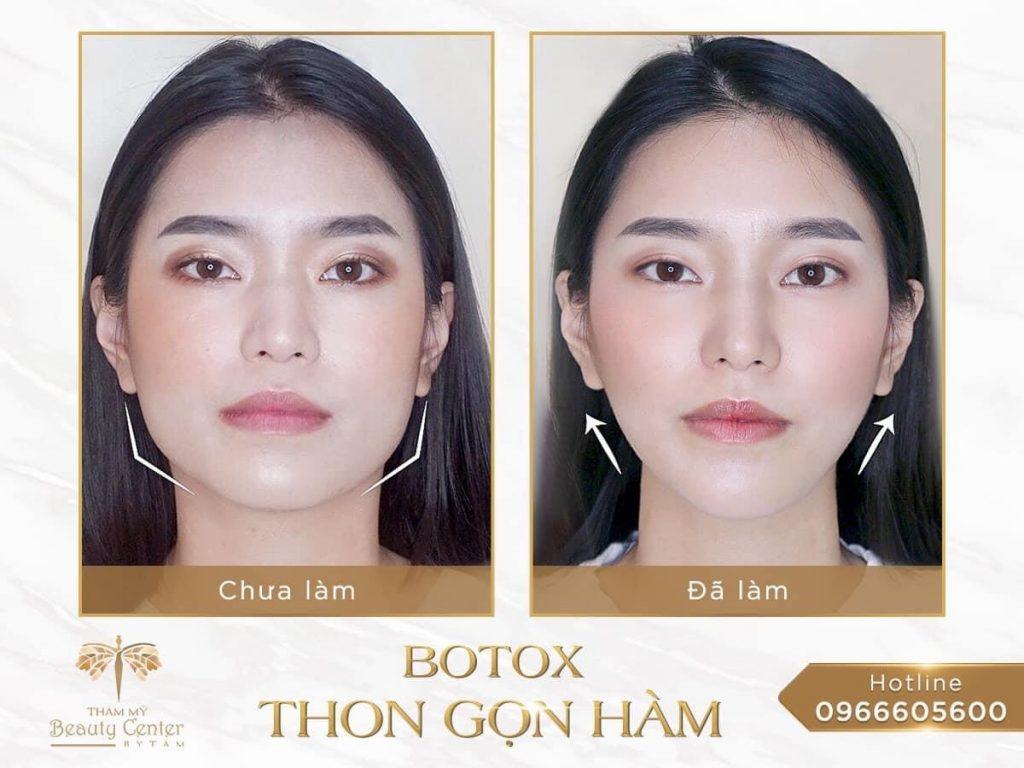 tiêm botoxx gọn hàm giữ được bao lâu