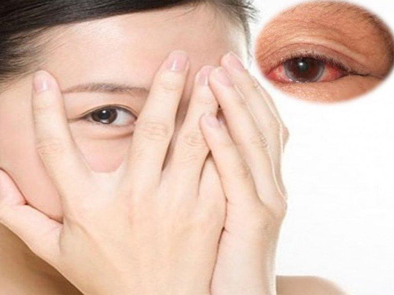 mắt bị nhiễm trùng