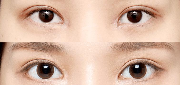 mở rộng góc mắt là gì