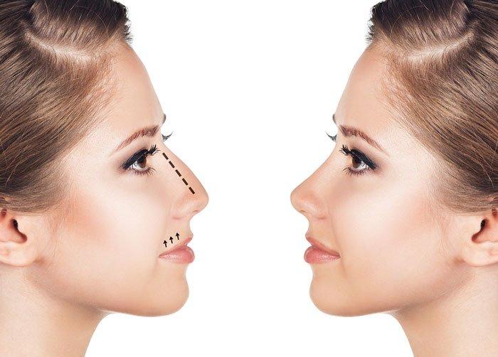 lưu ý khi sửa mũi gồ