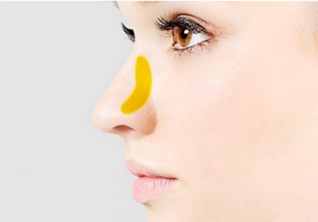 nâng mũi cấu trúc sụn tự thân là gì