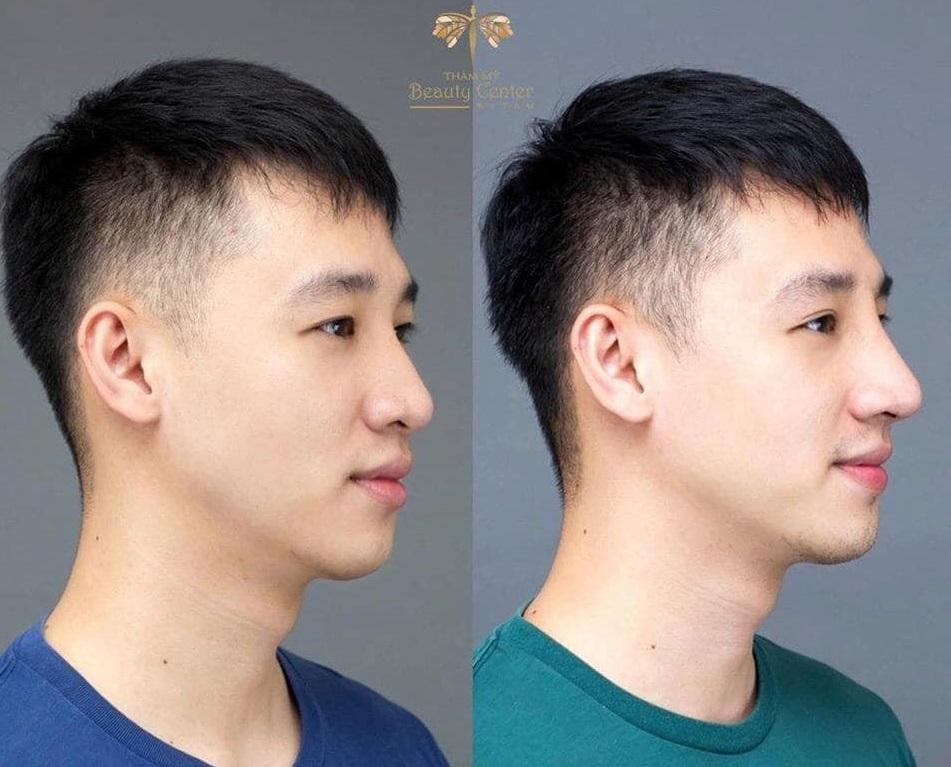 nâng mũi trước và sau