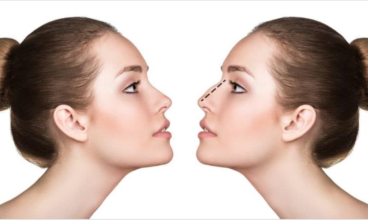 lưu ý khi nâng mũi bọc sụn