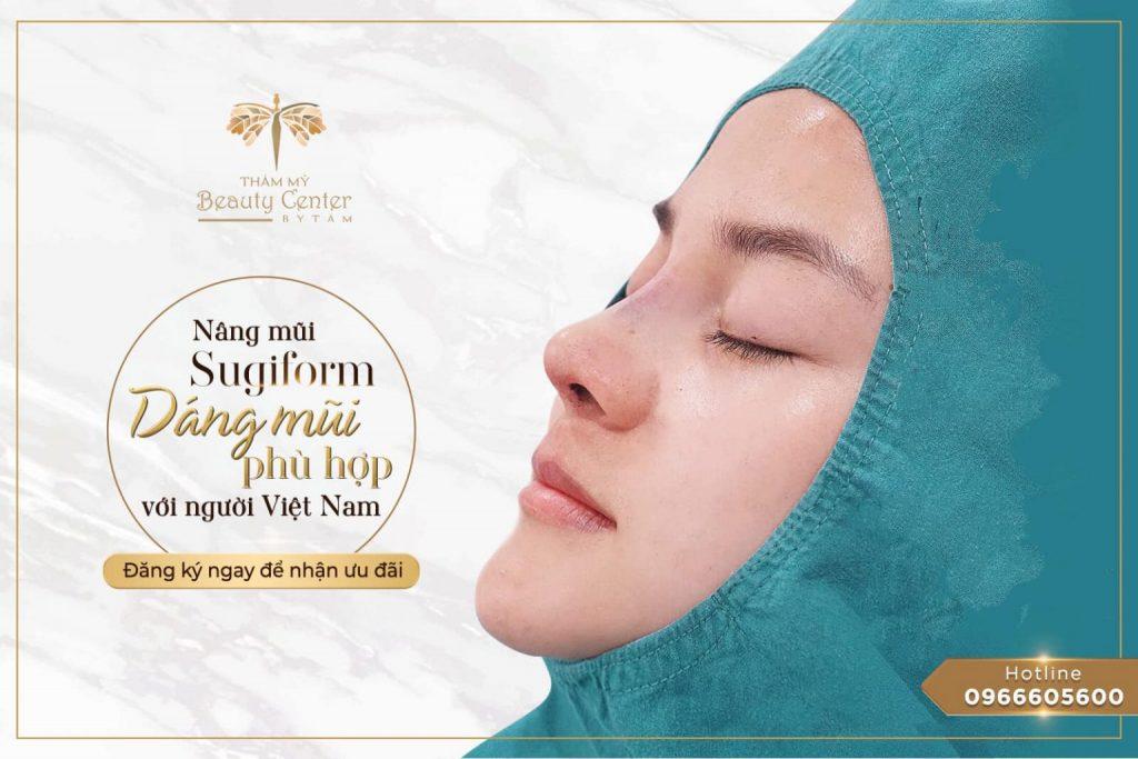 nâng mũi sugiform