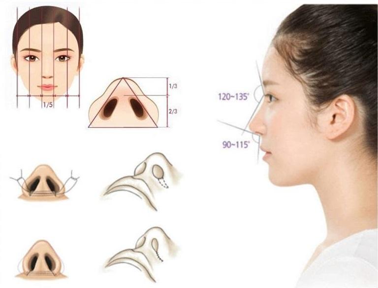 cắt cánh mũi