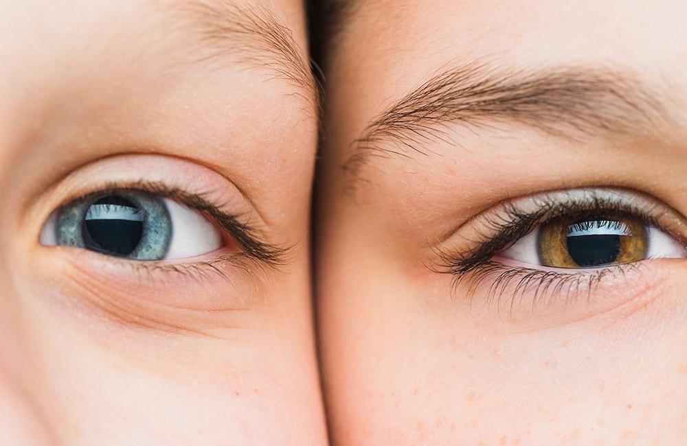 lấy mỡ mí mắt