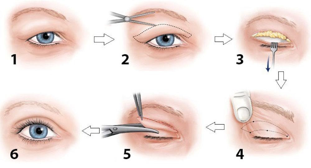 kỹ thuật cắt mí ở nam giới