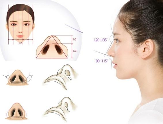 Cắt cánh mũi là gì
