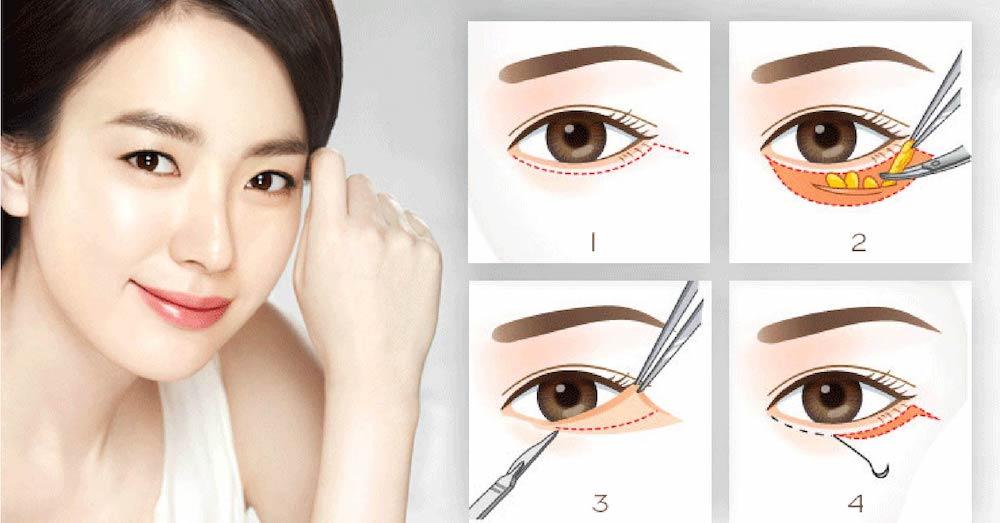 phương pháp bóc mỡ mắt