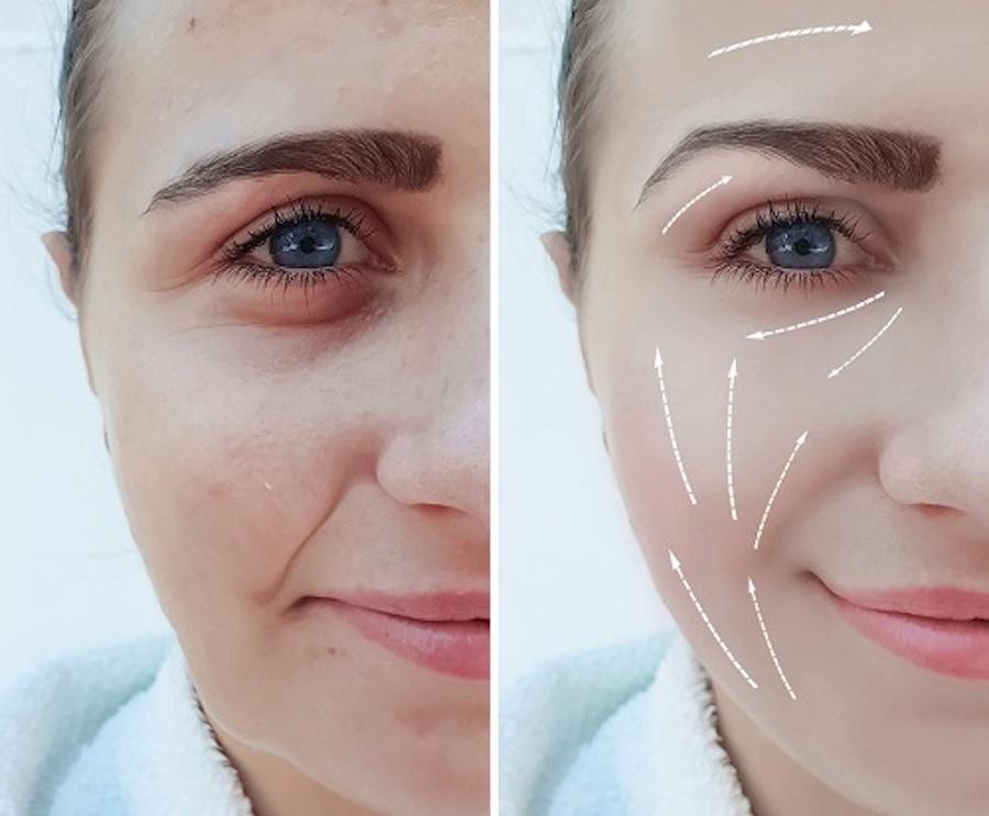 công nghệ trẻ hoá da
