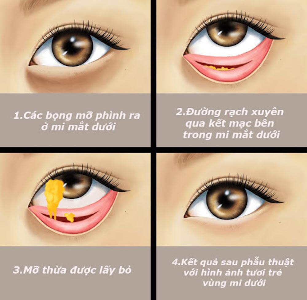 bóc mỡ bọng mắt
