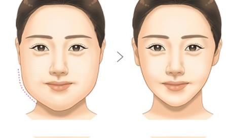 giảm mỡ má mỡ mặt