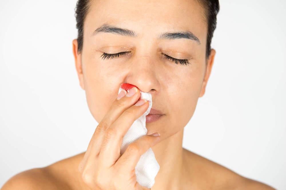 biến chứng sau khi nâng mũi