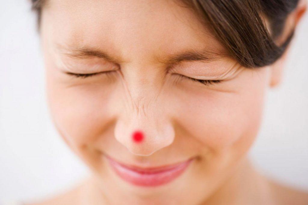 thủng da đầu mũi
