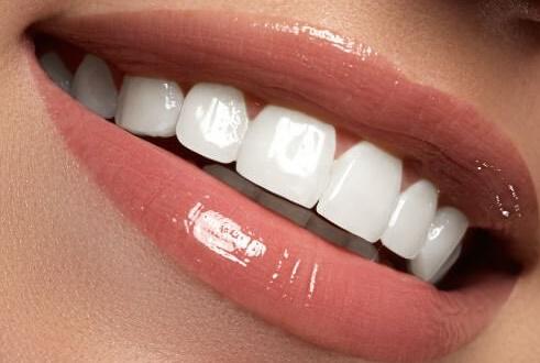 răng sứ Lava Plus