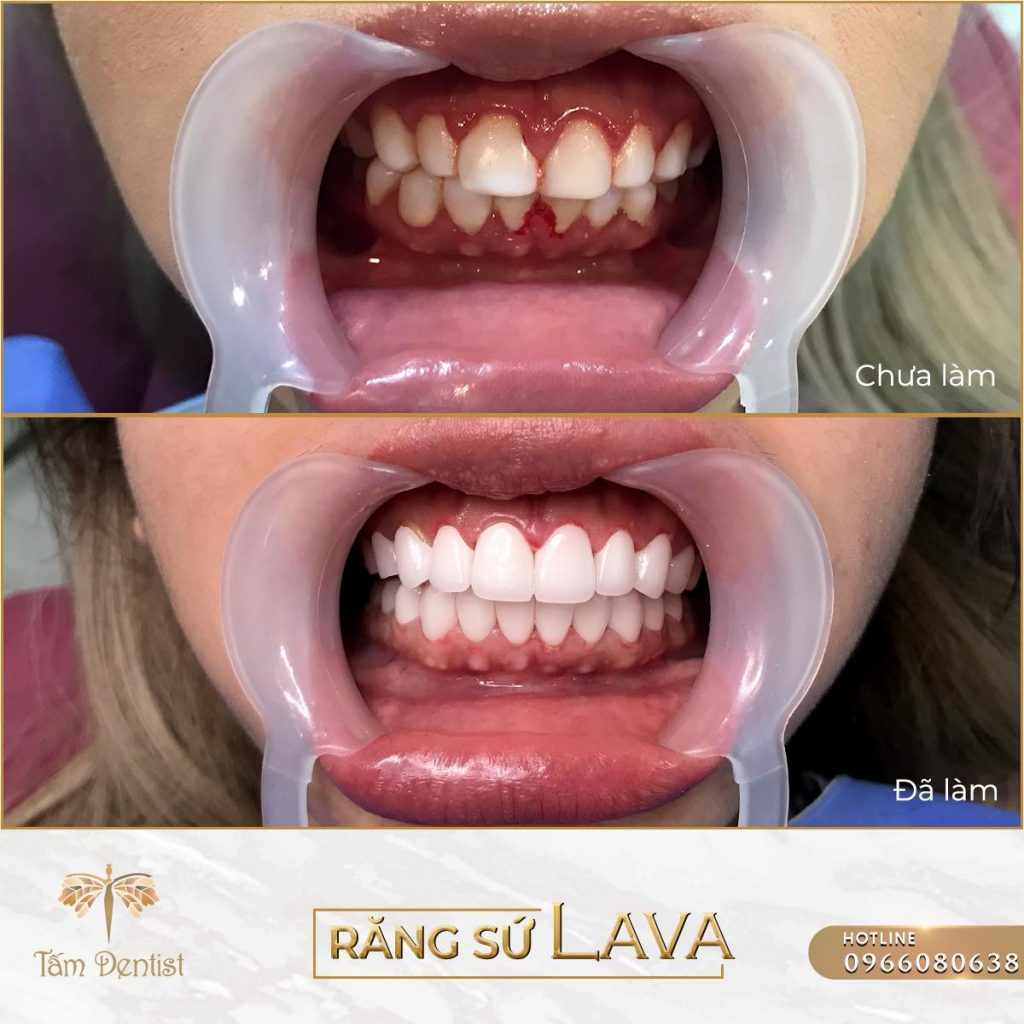 bọc răng sứ LAVA