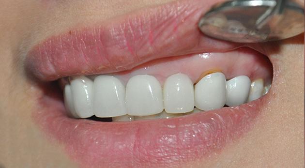 răng bị giảm chức năng