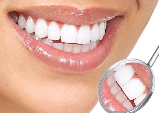 bọc răng sứ siêu đẹp