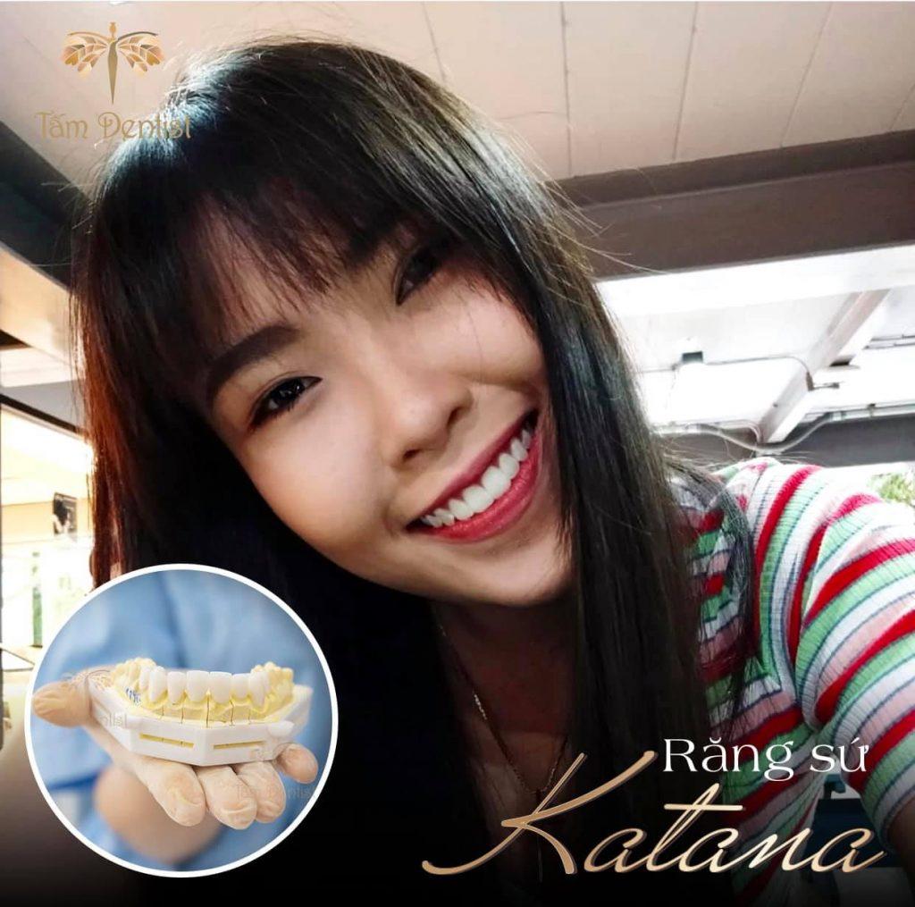 bọc răng sứ katana