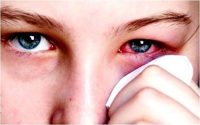 nguyên nhân biến chứng mắt