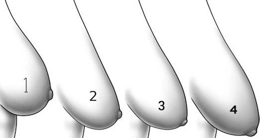 các cấp độ ngực trễ