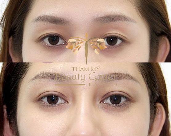 thẩm mỹ mắt trước và sau