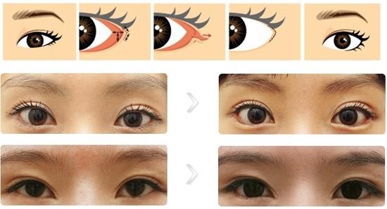 quy trình hạ mắt xếch