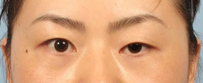 mắt không cân đối