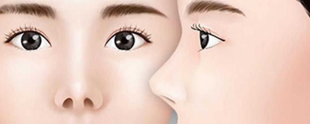 đầu mũi ngắn