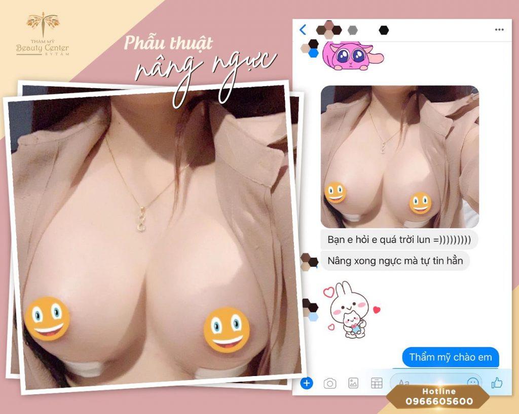 khách hàng nâng ngực đẹp tại Tấm