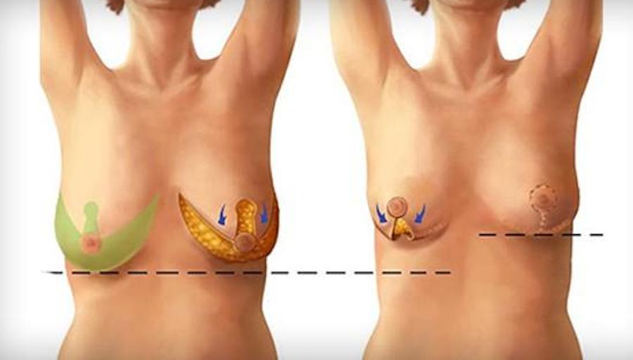 sa trễ ngực có nguy hiểm không