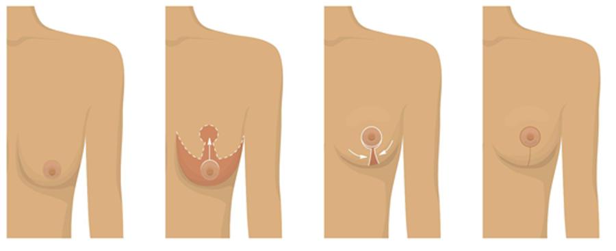 quy trình treo ngực sa trễ
