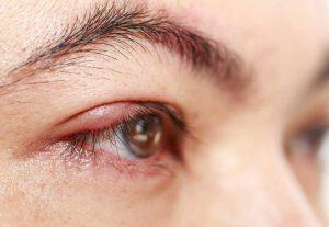 biến chứng mở góc mắt