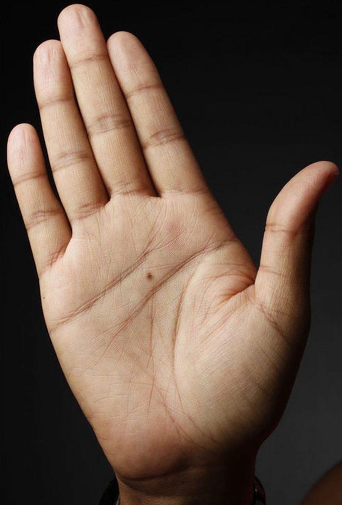 nốt ruồi trong bàn tay