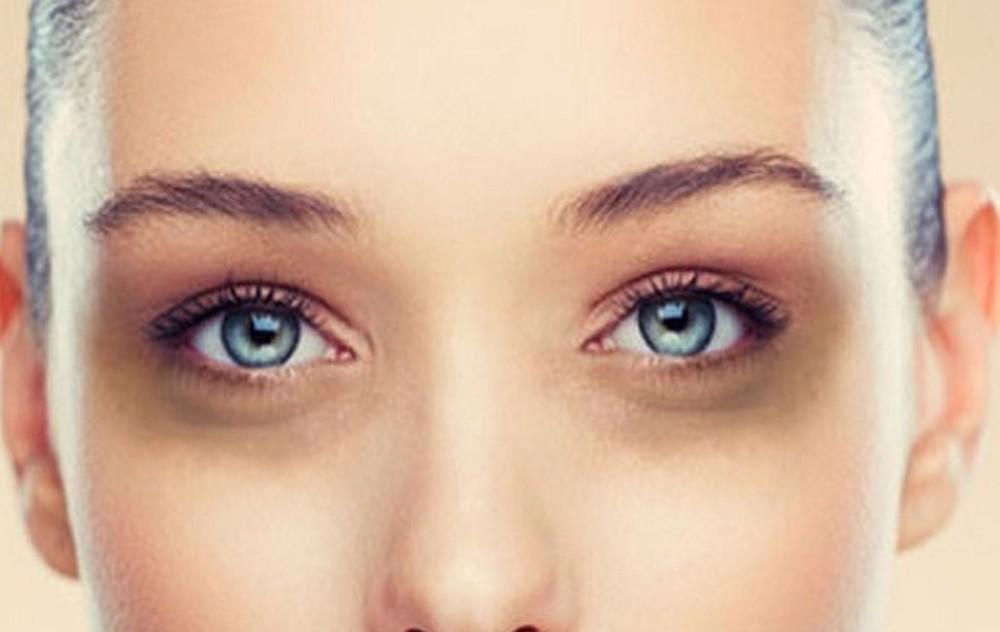 thâm mắt quầng mắt