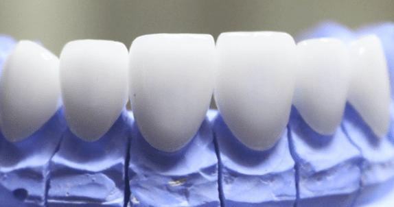 Răng sứ HT Smile