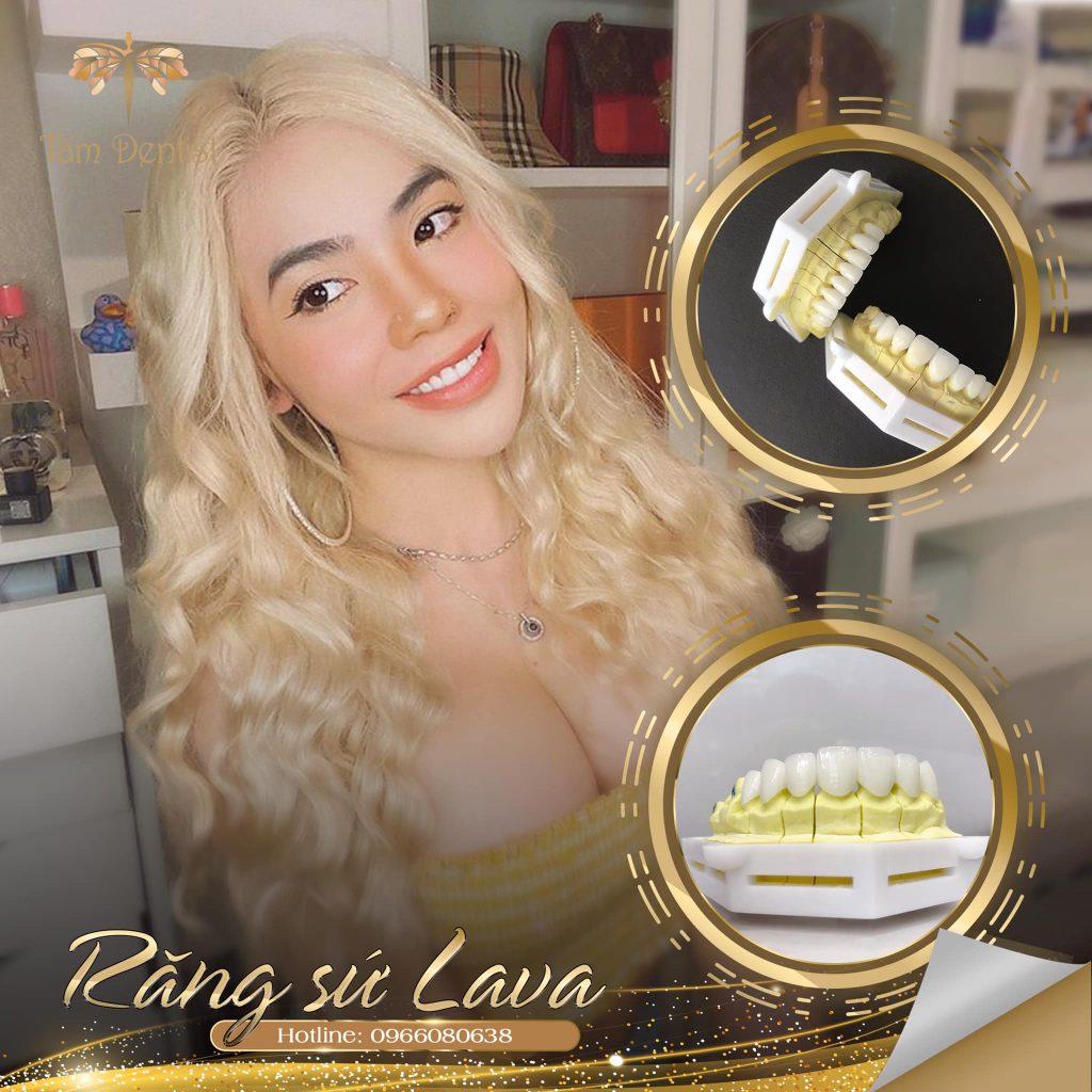 răng sứ Lava