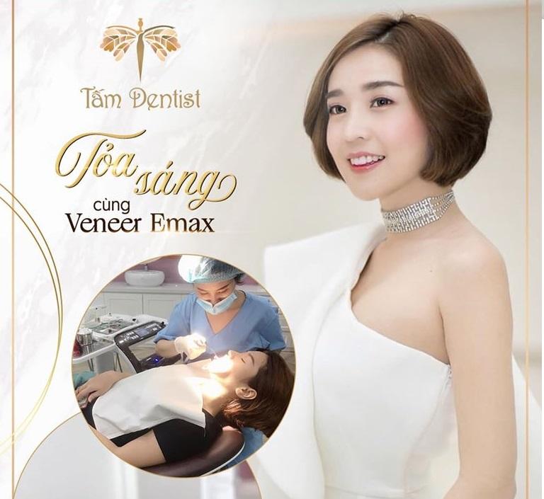loại sứ Veneer Emax