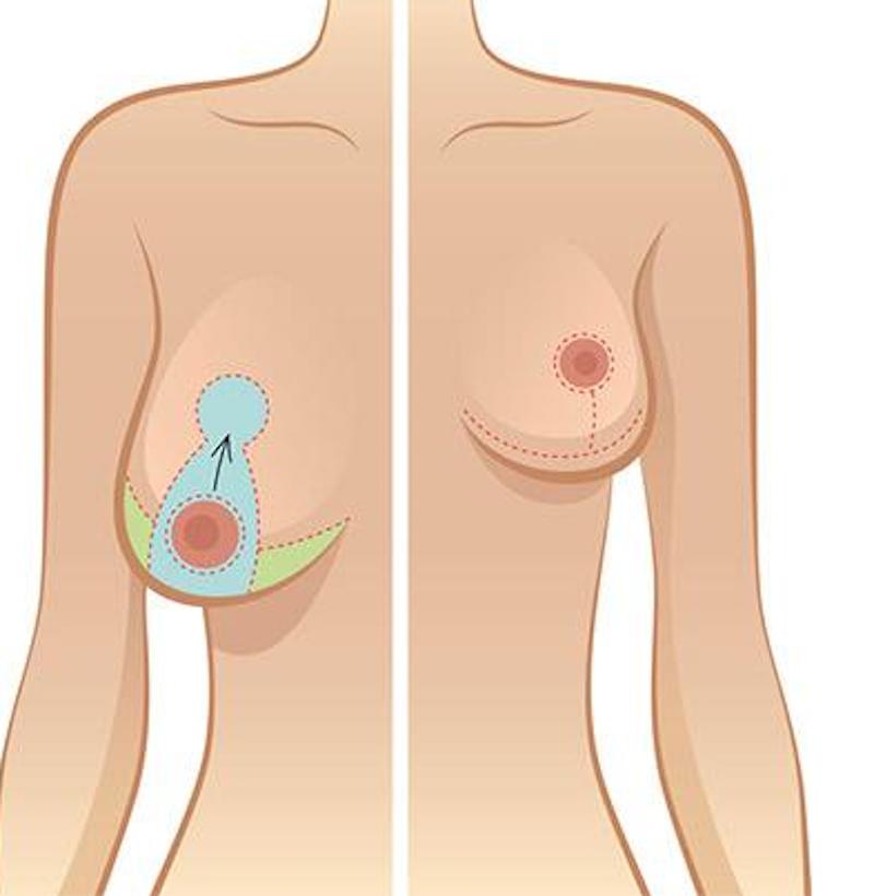 treo ngực sa trễ có nâng ngực được không