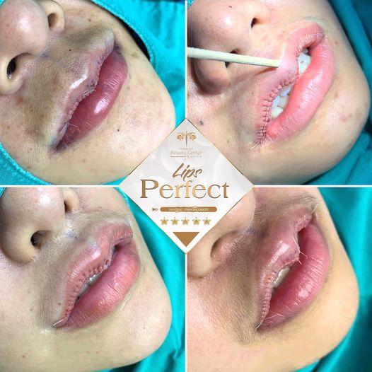 quy trình cắt môi tại Tấm