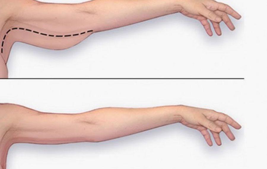 giảm mỡ bắp tay