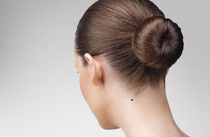 nốt ruồi sau gáy